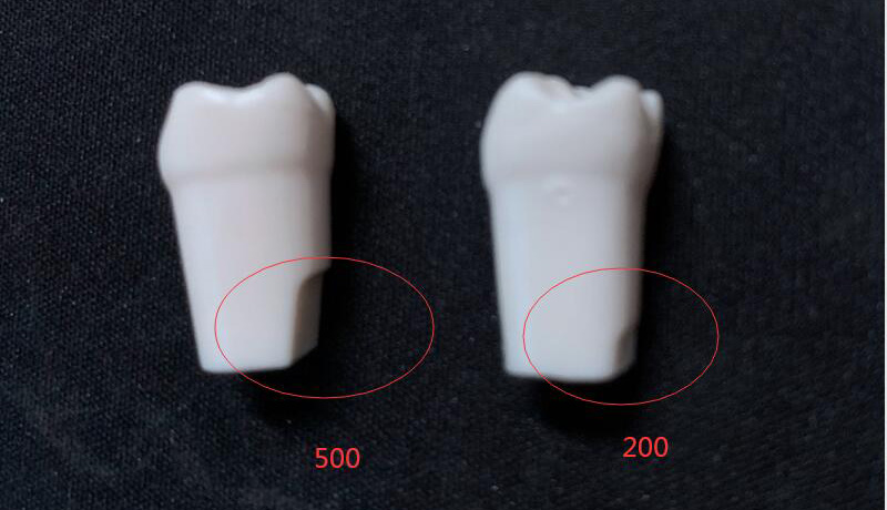 Permanent Teeth with Straight Roots